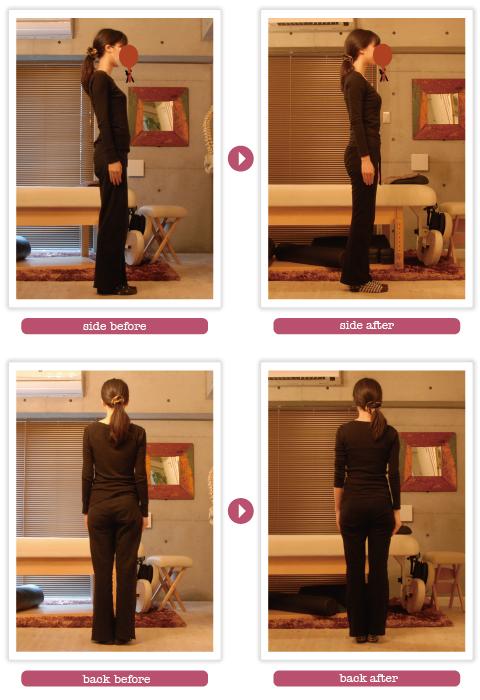 スタイル矯正before-after_6